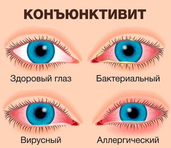 Виды капель от конъюнктивита
